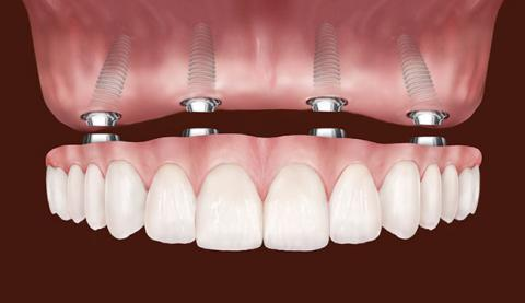 best dental implants in Sarasota